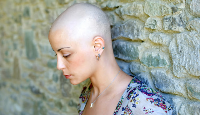 young woman with hair loss leaning against a wall