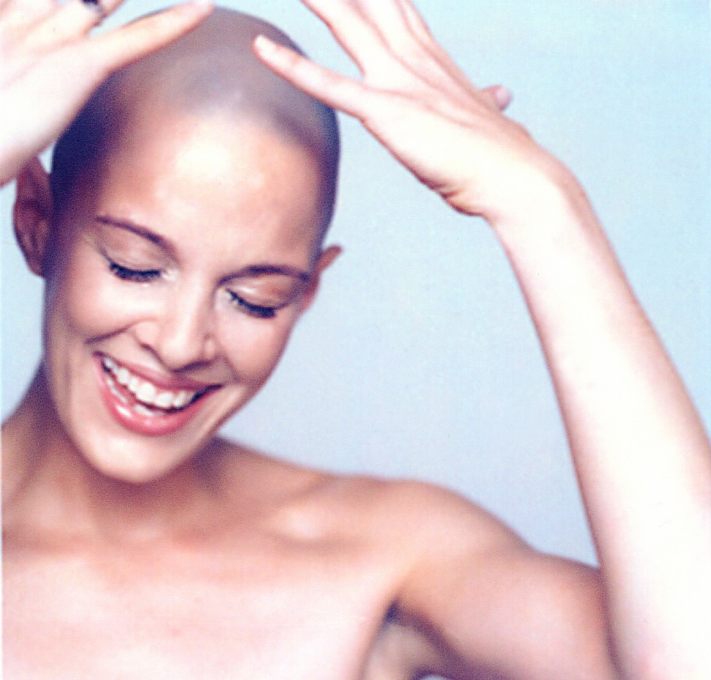 Alopecia beauty and female hair loss